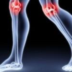 Dolegliwość reumatyczna- objawy i leczenie