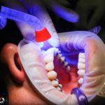 Złe postępowanie żywienia się to większe niedobory w zębach a dodatkowo ich zgubę